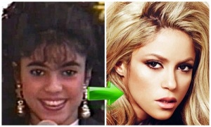 shakira-before-after