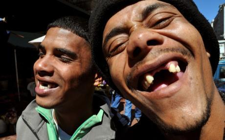 teeth_1497108c